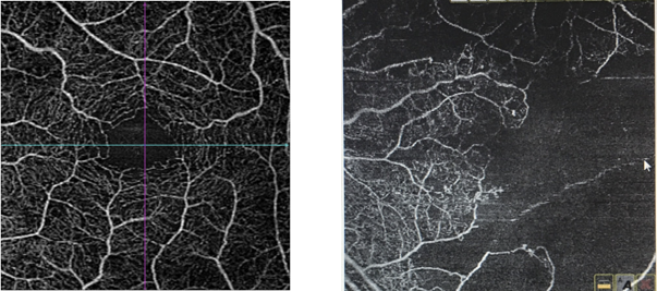 oct-angiography-diabetic-retinopathy