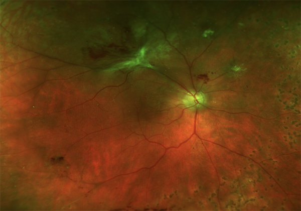 superotemporal-tractional-retinal-detachment