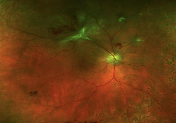 superotemporal-tractional-retinal-detachment